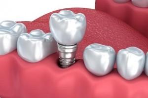 大连齿医生口腔科普单颗种植牙寿命有多久